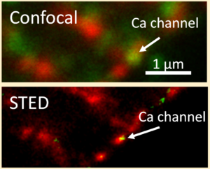 Fig. 3: Immunofluorescence analysis of Ca2+ channel expression using confocal and STED microscopy in a cardiomyocyte